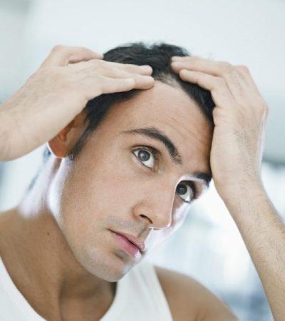 Tổng hợp 8 nguyên nhân gây rụng tóc phổ biến ở nam giới